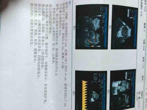 journal_insert_pic_140160919
