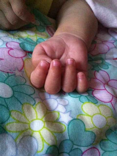 宝宝大拇指内扣 有没有宝宝大拇指内扣的 听说这样不好,要怎么