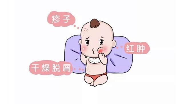 过敏症状主要是皮肤瘙痒,有的宝宝会把自己抓得满脸是伤,或是不停地